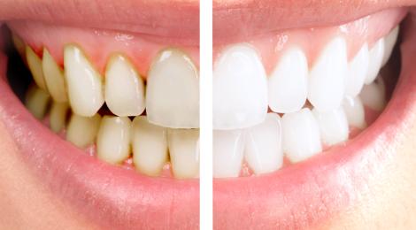 Zuby po odstranění plaku