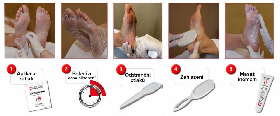 Calluspeeling-postup