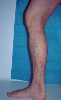 zdrava noha
