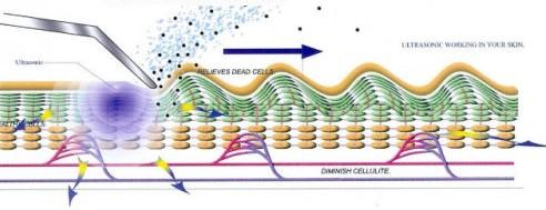 Ultrazvuková mezoterapie